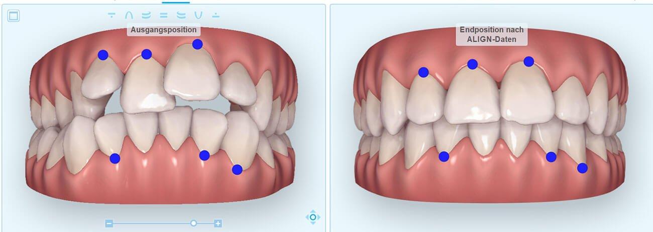 Digitale Kieferorthopädie vorher nachher