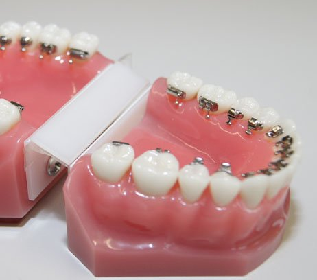 Lingualtechnik Modell Unsichtbare Zahnspange